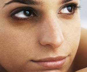 Dark Eye Circles Treatment Leeds