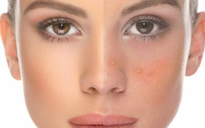 Rosacea Treatment Leeds