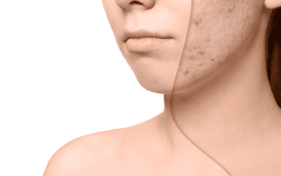 Acne Scar Treatment Leeds