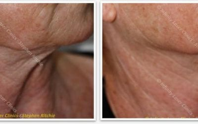Skin Tightening Laser, Leeds