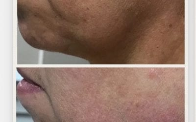 Jawline and Jowls Dermal Filler Treatment Leeds