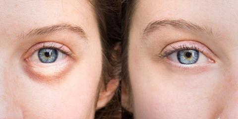 Puffy Eyes and How To Treat Them
