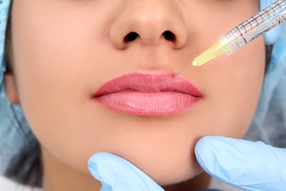 Lip Filler Leeds at Medifine Aesthetics