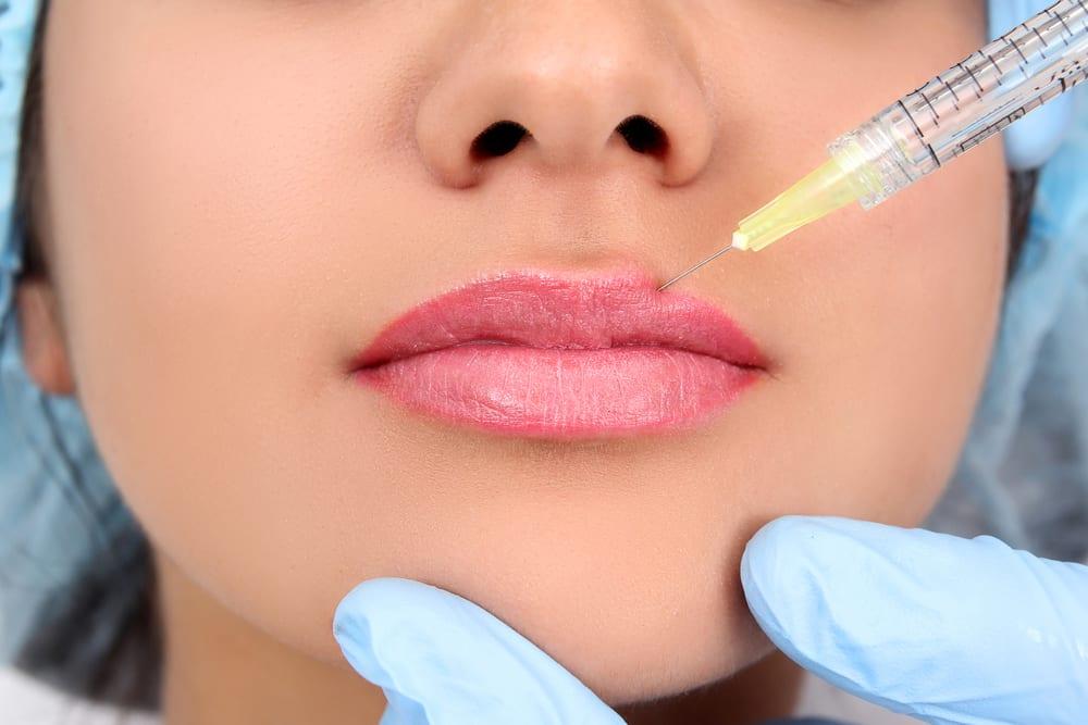 Lip Filler Leeds at Medifine Aesthetics
